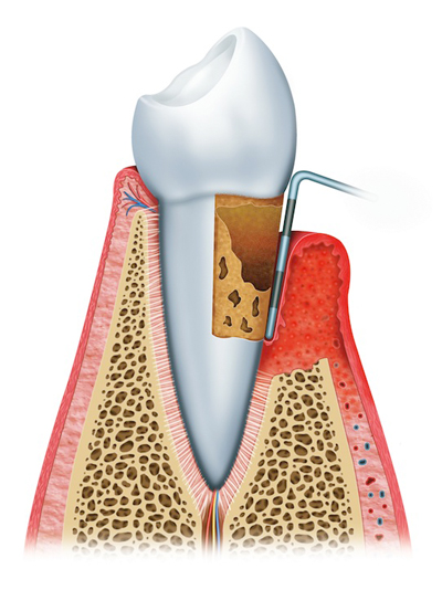 Advanced Periodontitis Periodontist