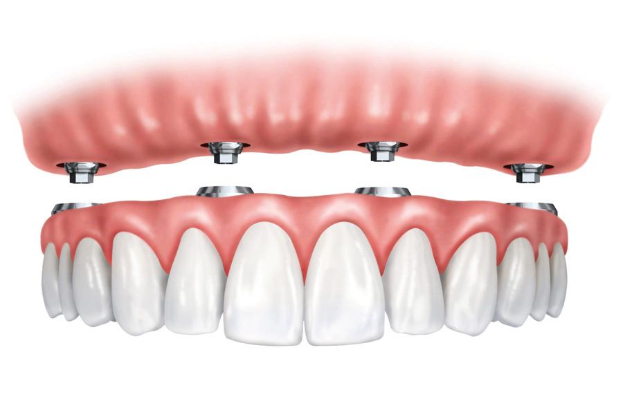 Affordable Dentures Phoenix Ahwatukee AZ