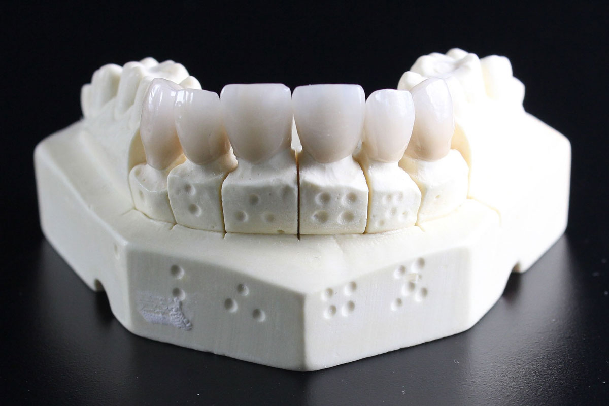 Partial Dentures Vs Dental Bridges