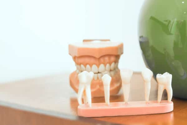 Dentures Implants