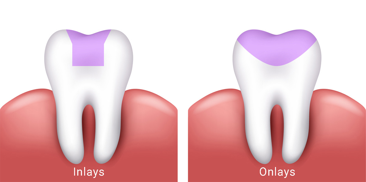 Dental Inlays & Dental Onlays