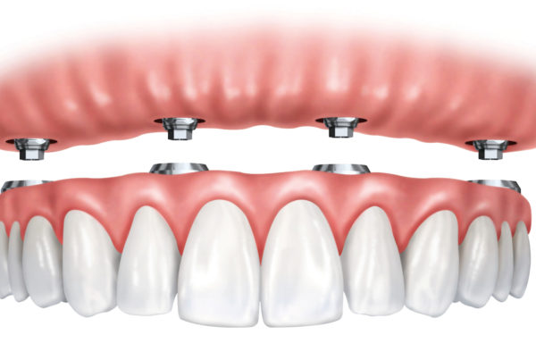 Traditional Dentures Implant Supported Dentures