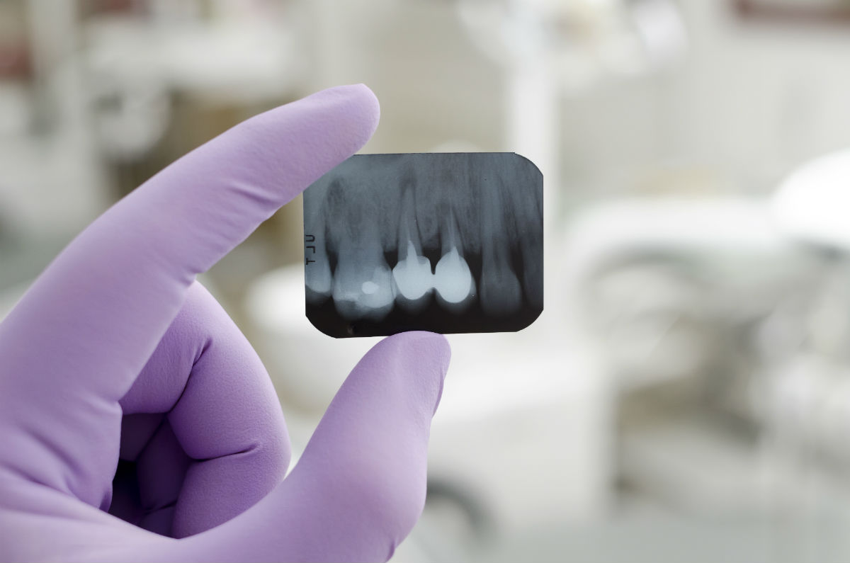 Dental Implants X Ray